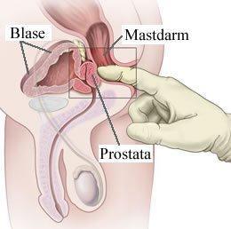 prostata massage sex strumpfhosengeschichten